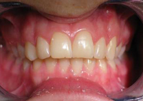 Protruding front teeth
